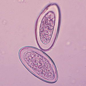 tojások enterobiosis vermicularis férgek gyógyszere