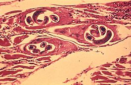 trichinosis fertőzés