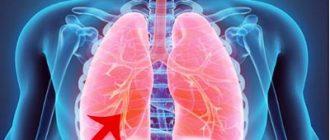 Az emberi test parazita fertőzése és a tünetek felsorolása - Nők